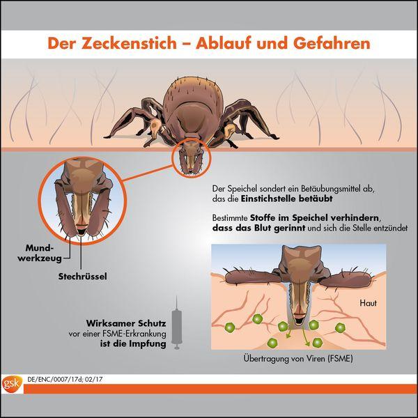 Der Zeckenstich - Ablauf und Gefahren. Foto: djd/GSK